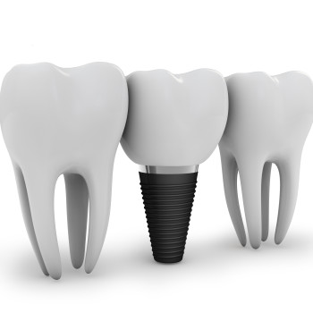 Dental implant maintenance and oral care