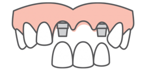 multiple tooth replacement graphic