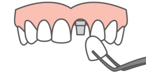 single tooth replacement graphic